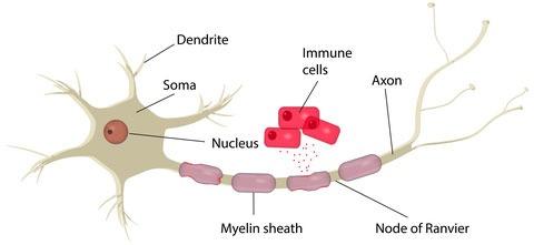 Behandlar autoimmuna sjukdomar